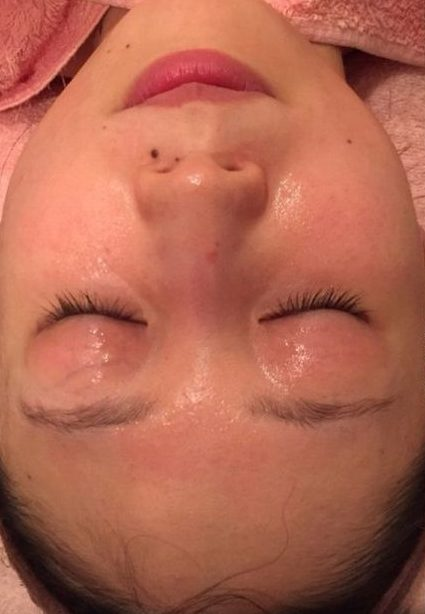 が 痒い 赤い 顔 顔のかゆみや赤い腫れ、原因は乾燥やアレルギー?意外な病気の可能性も