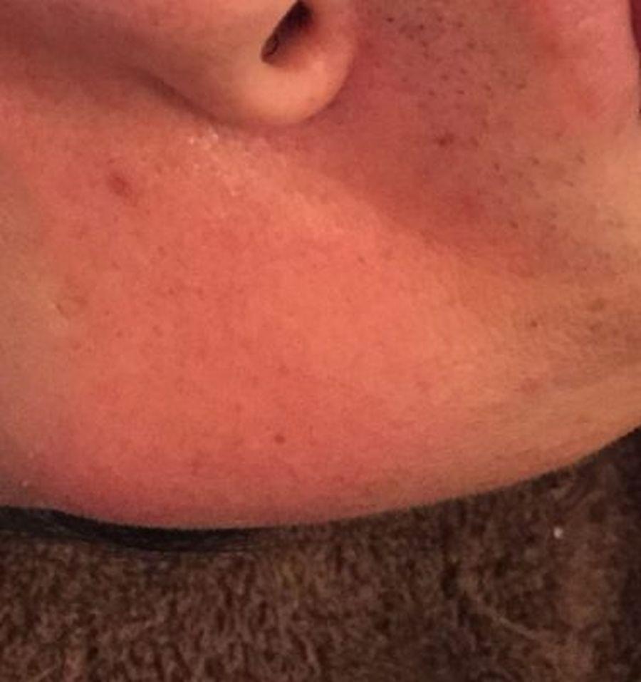 赤く なる 後 洗顔